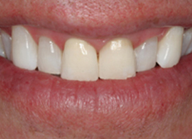Improving Your Smile