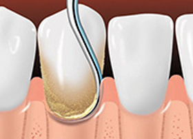 Gum and Periodontal Disease