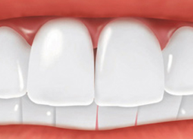 Restoring and Replacing Teeth