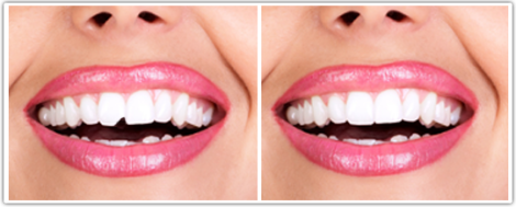 Tooth Bonding Service in East Islip