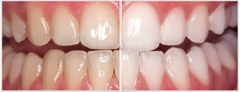 East Islip Tooth Whitening