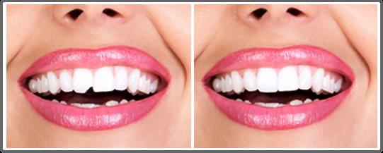 Картинки по запросу Front tooth partially broken