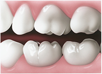 Tooth_Crack_1