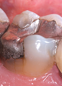 cracked_tooth_filling